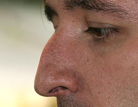 Коррекция носа операция цена омск